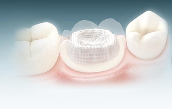 Produkt ze sklepu stomatologicznego Facedental